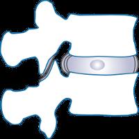 Wirbelgelenk mit dazwischen liegender Bandscheibe