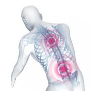 Bandscheibenvorfall mit Schmerzen im Rücken